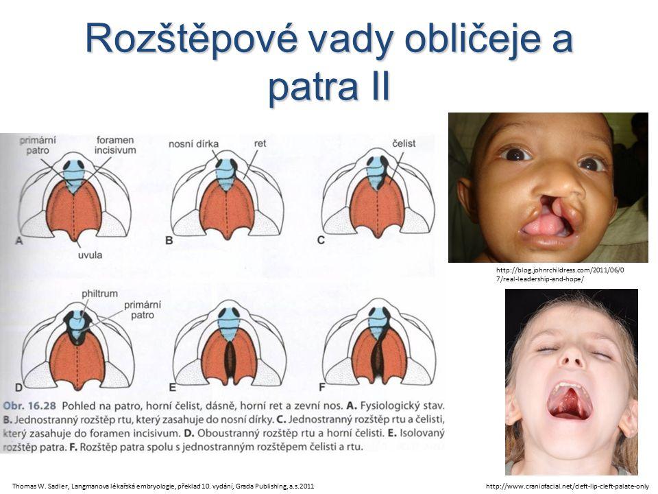 Rozštěpové vady obličeje a patra II Thomas W.Sadler, Langmanova lékařská embryologie, překlad 10.