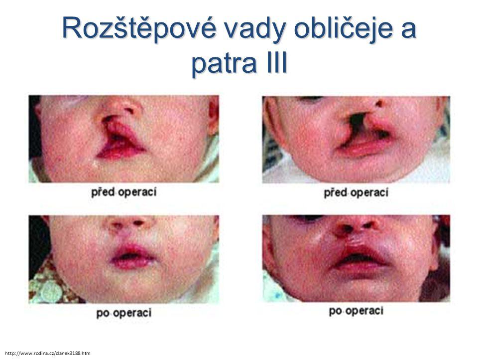Rozštěpové vady obličeje a patra III http://www.rodina.cz/clanek3188.htm