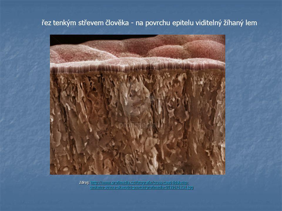 Zdroj: http://www.profimedia.cz/fotografie/cross-casti-lidskeho- tenkeho-streva-ukazujici-povrch/profimedia-0039676234.jpg http://www.profimedia.cz/fo