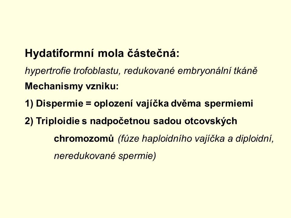 Hydatiformní mola částečná: hypertrofie trofoblastu, redukované embryonální tkáně Mechanismy vzniku: 1) Dispermie = oplození vajíčka dvěma spermiemi 2