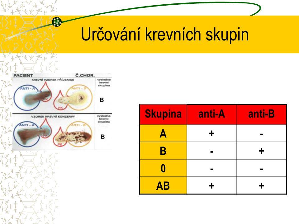 Určování krevních skupin Skupinaanti-Aanti-B A+- B-+ 0-- AB++