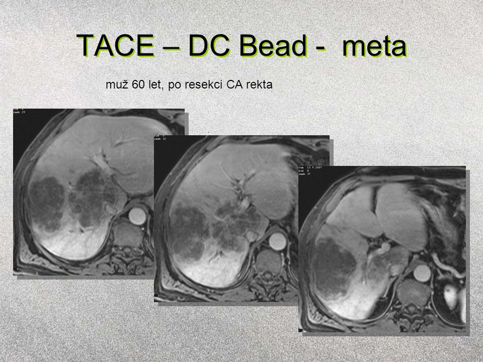 TACE – DC Bead - meta muž 60 let, po resekci CA rekta