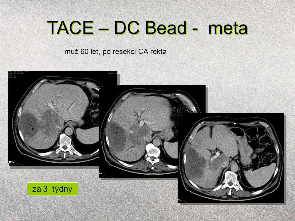 TACE – DC Bead - meta muž 60 let, po resekci CA rekta za 3 týdny