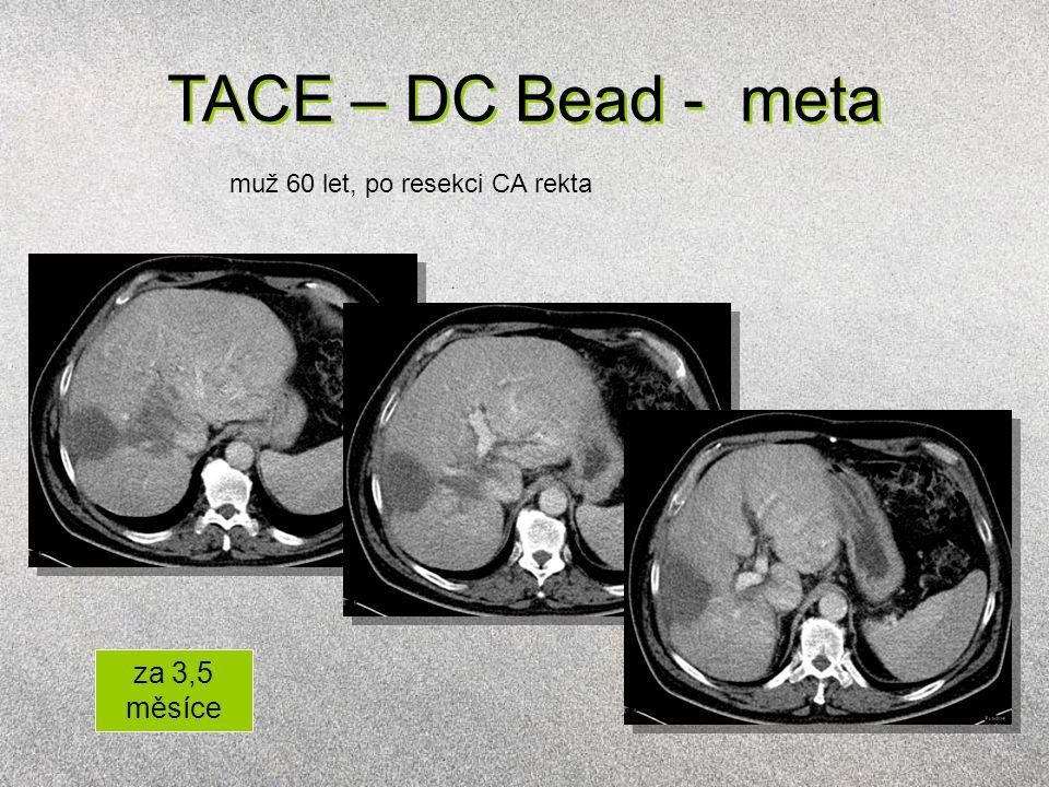 TACE – DC Bead - meta muž 60 let, po resekci CA rekta za 3,5 měsíce