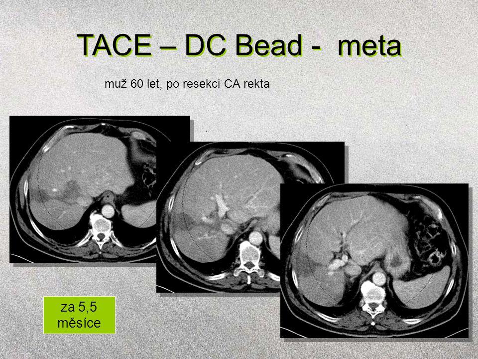 TACE – DC Bead - meta muž 60 let, po resekci CA rekta za 5,5 měsíce