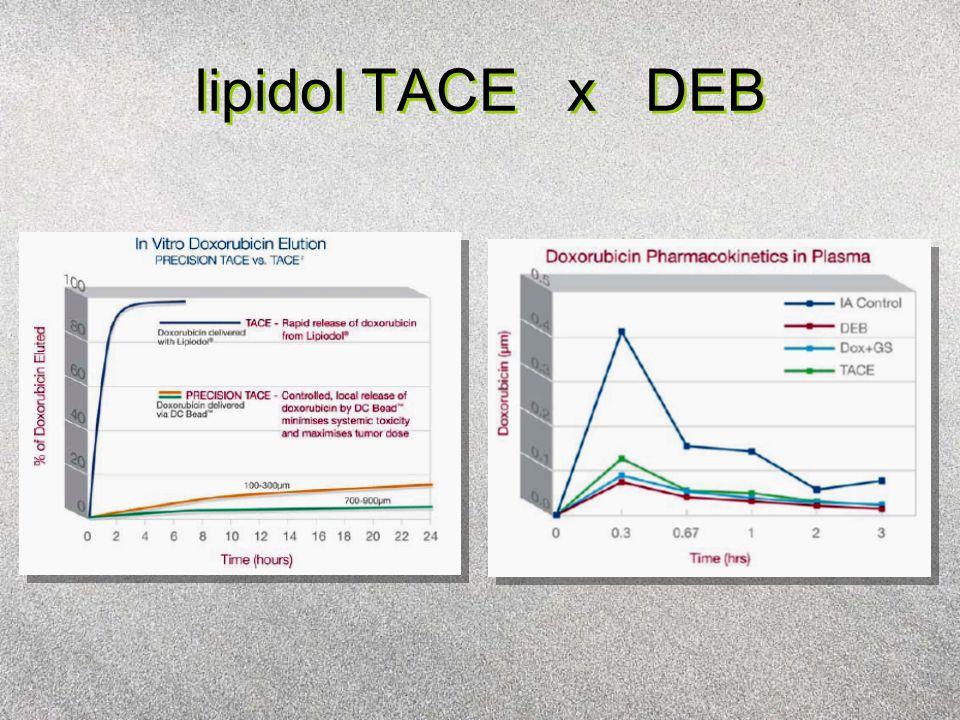 lipidol TACE x DEB