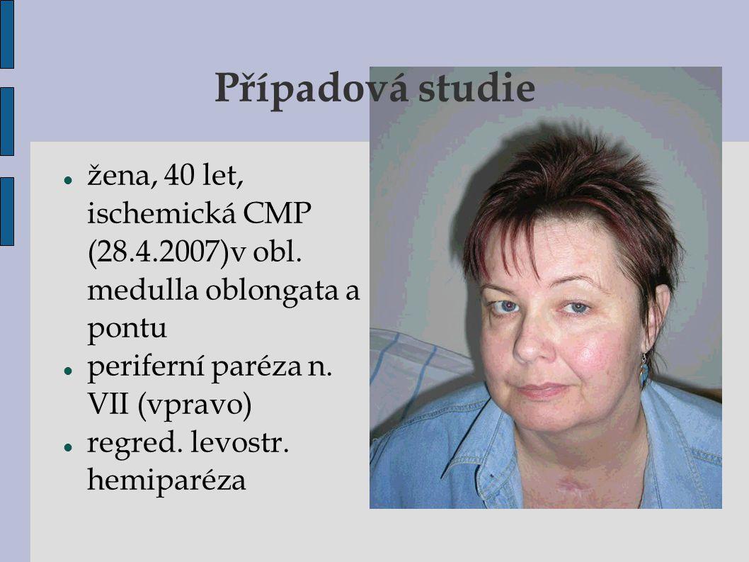 žena, 40 let, ischemická CMP (28.4.2007)  v obl. medulla oblongata a pontu periferní paréza n. VII (vpravo) regred. levostr. hemiparéza