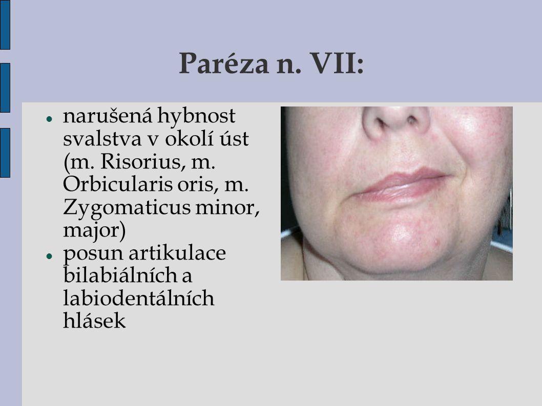 Paréza n. VII: narušená hybnost svalstva v okolí úst (m. Risorius, m. Orbicularis oris, m. Zygomaticus minor, major)  posun artikulace bilabiálních a