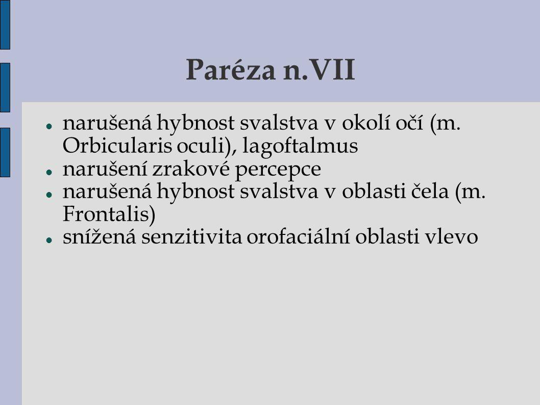 Paréza n.VII narušená hybnost svalstva v okolí očí (m. Orbicularis oculi), lagoftalmus narušení zrakové percepce narušená hybnost svalstva v oblasti č