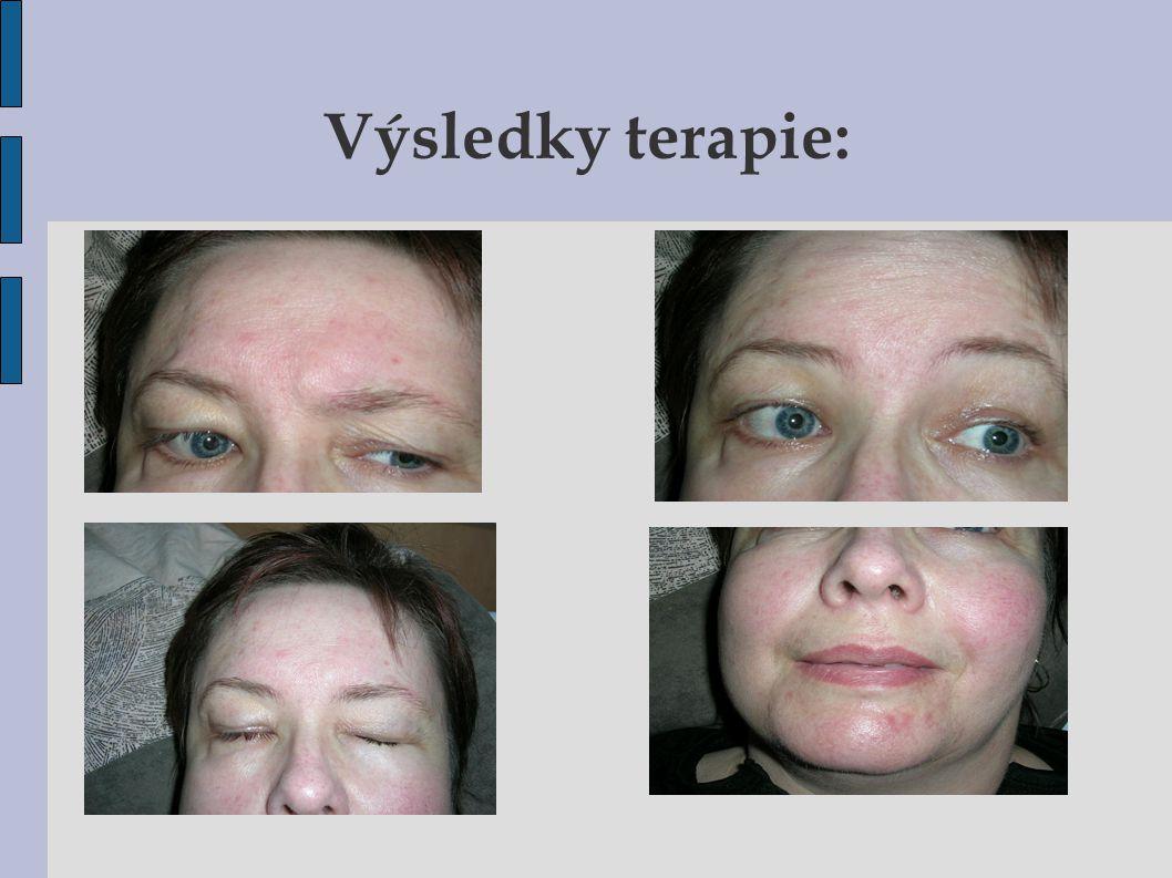 Výsledky terapie: