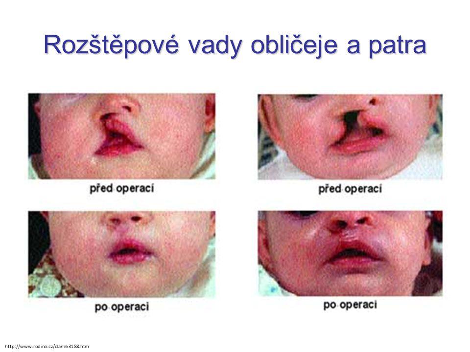 Rozštěpové vady obličeje a patra http://www.rodina.cz/clanek3188.htm