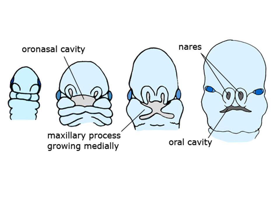 Vývojové vady ageneze plic –není vytvořen plicní parenchym, průdušky ani plicní cévy –jednostranná ageneze je slučitelná se životem aplázie plic –krátké průduškové větvení bez plicního parenchymu a cév hypoplázie plic –jsou vytvořeny rudimentální průdušky, plicní parenchym a cévy –častý u vrozené brániční kýly –při postižení jedné plíce má tato větší plíce sklon k infekcím sekvestrace plic –okrsek plicní tkáně nezapojený do průduškového stromu –cévy jsou větvemi z větví hrudní aorty