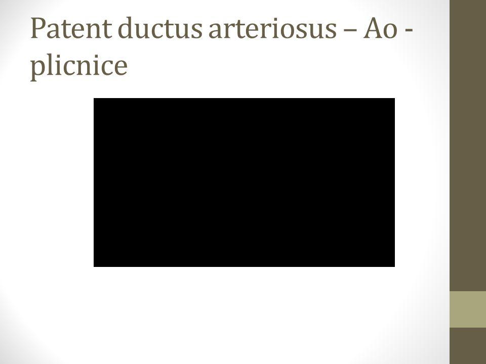 Patent ductus arteriosus – Ao - plicnice