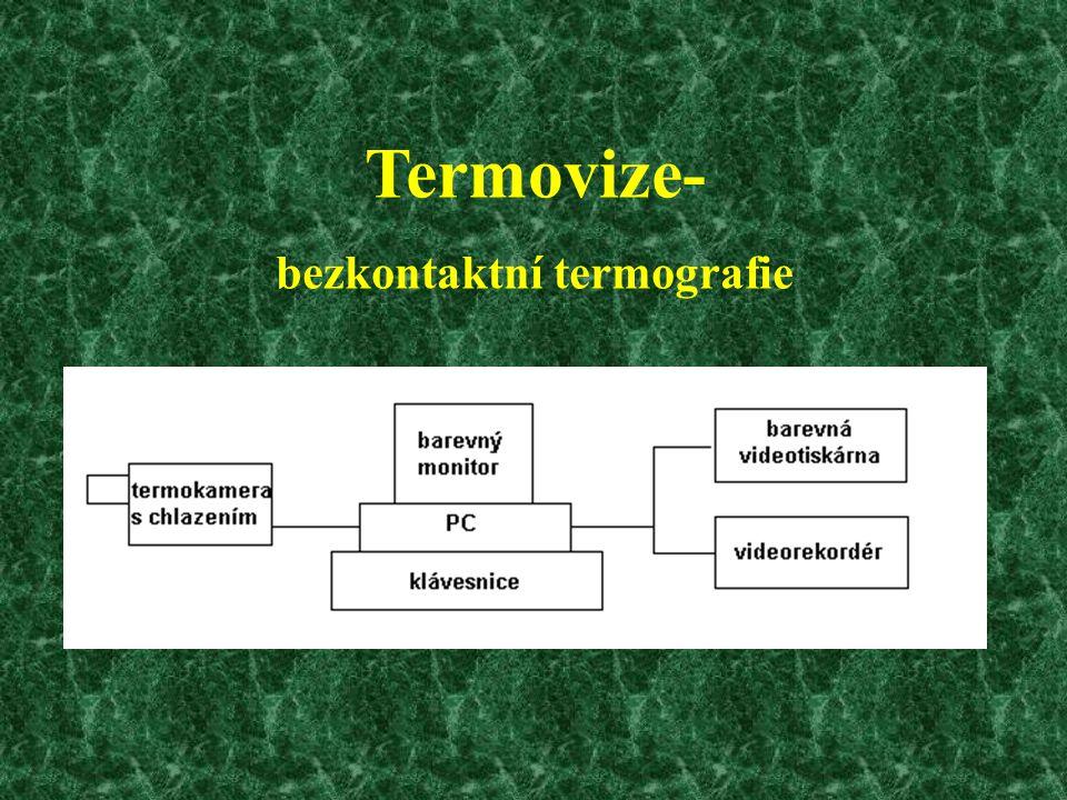 Termovize- bezkontaktní termografie