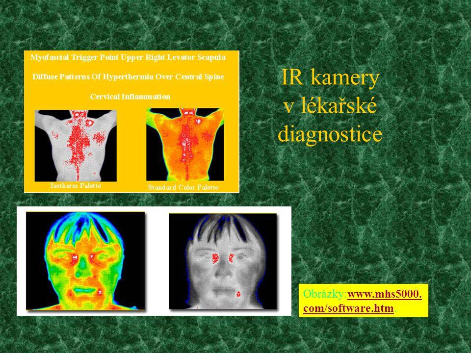 IR kamery v lékařské diagnostice Obrázky:www.mhs5000.