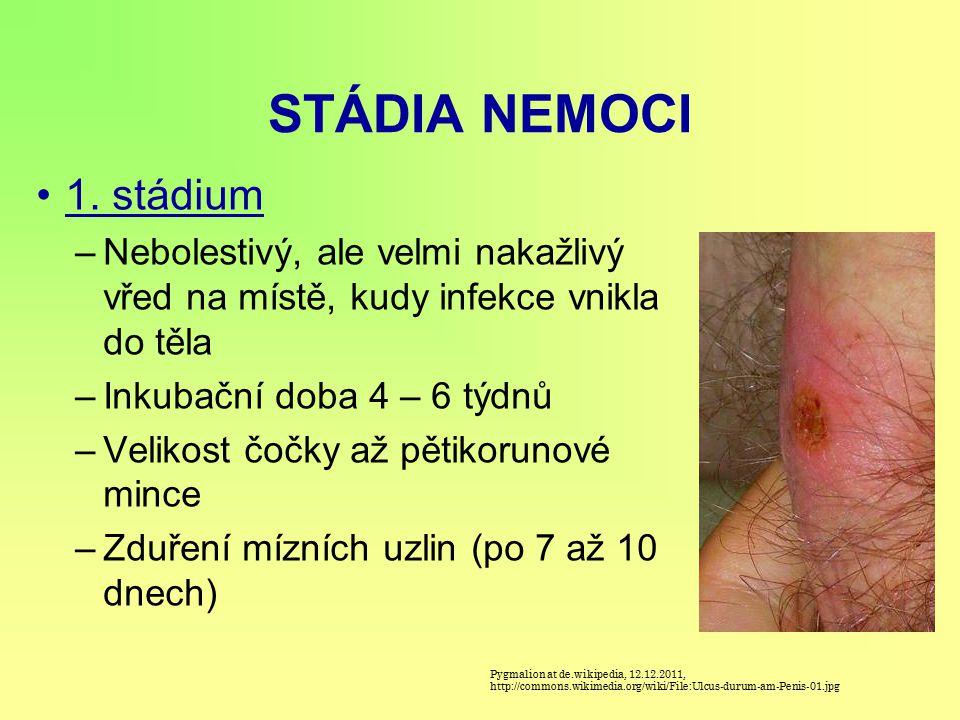 STÁDIA NEMOCI 1. stádium –Nebolestivý, ale velmi nakažlivý vřed na místě, kudy infekce vnikla do těla –Inkubační doba 4 – 6 týdnů –Velikost čočky až p