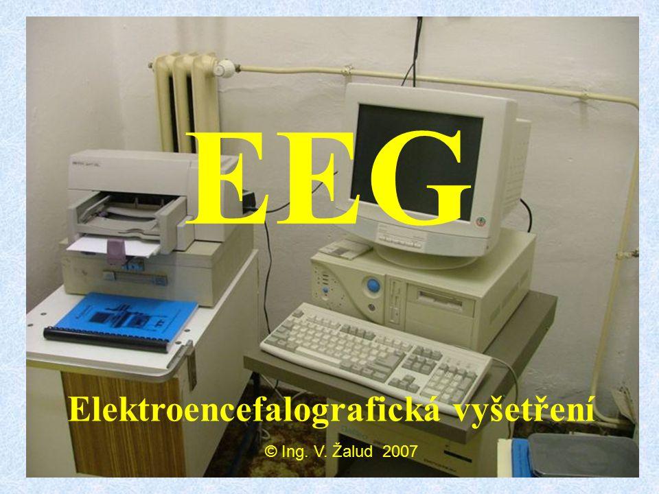 EEG Elektroencefalografická vyšetření © Ing. V. Žalud 2007