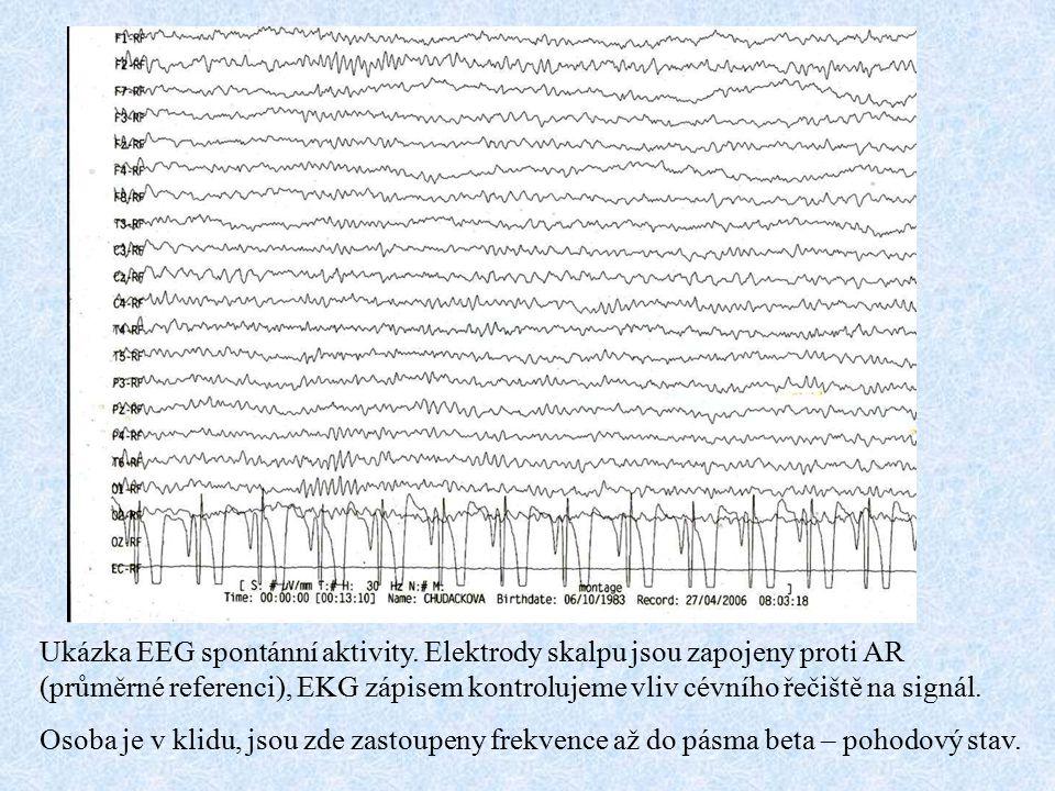 Ukázka EEG spontánní aktivity. Elektrody skalpu jsou zapojeny proti AR (průměrné referenci), EKG zápisem kontrolujeme vliv cévního řečiště na signál.