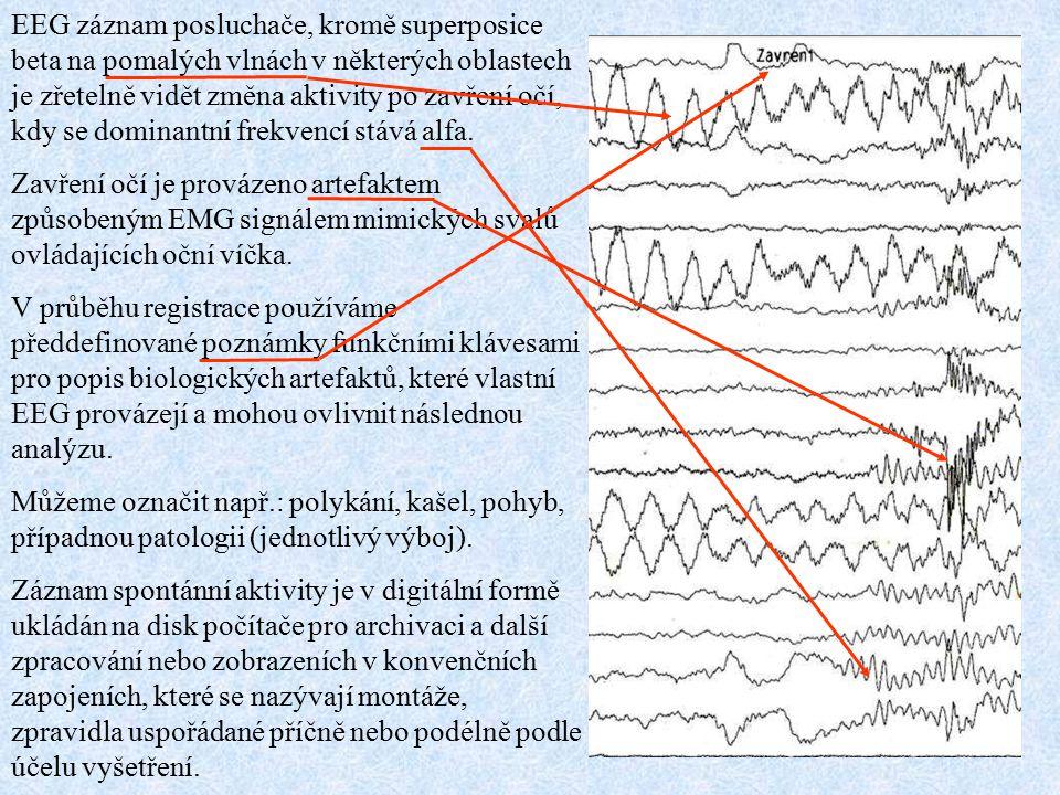 EEG záznam posluchače, kromě superposice beta na pomalých vlnách v některých oblastech je zřetelně vidět změna aktivity po zavření očí, kdy se dominantní frekvencí stává alfa.