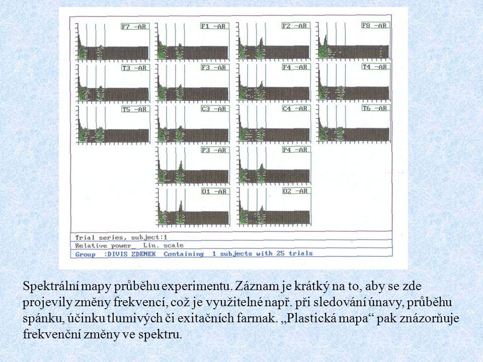 Spektrální mapy průběhu experimentu. Záznam je krátký na to, aby se zde projevily změny frekvencí, což je využitelné např. při sledování únavy, průběh