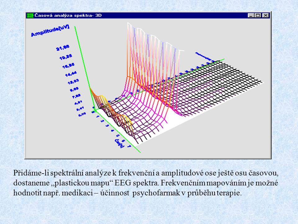 """Přidáme-li spektrální analýze k frekvenční a amplitudové ose ještě osu časovou, dostaneme """"plastickou mapu"""" EEG spektra. Frekvenčním mapováním je možn"""
