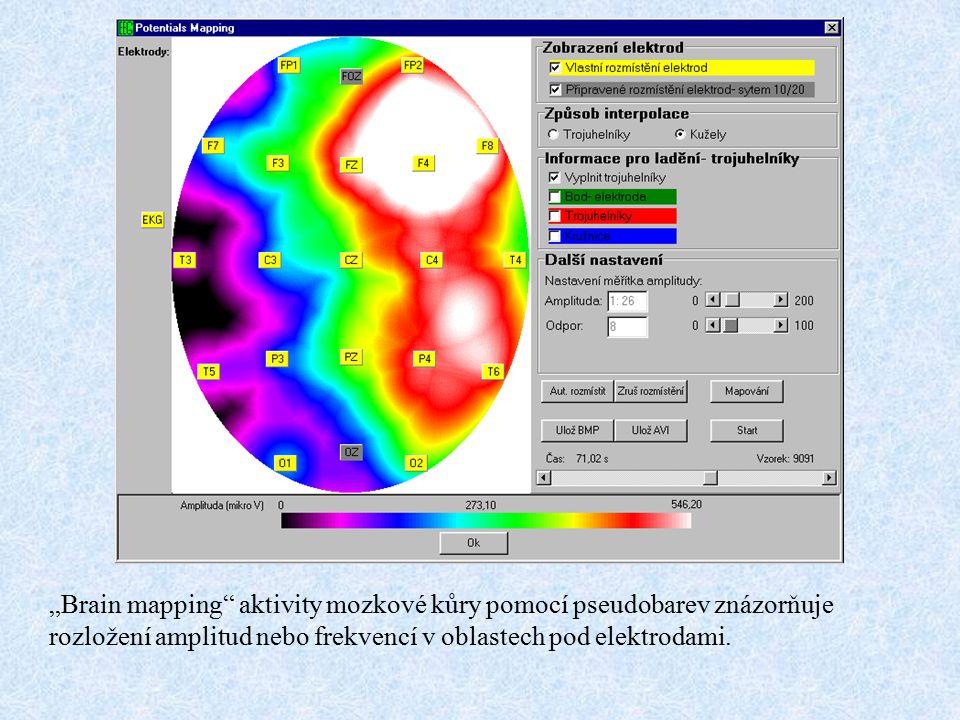 """""""Brain mapping"""" aktivity mozkové kůry pomocí pseudobarev znázorňuje rozložení amplitud nebo frekvencí v oblastech pod elektrodami."""
