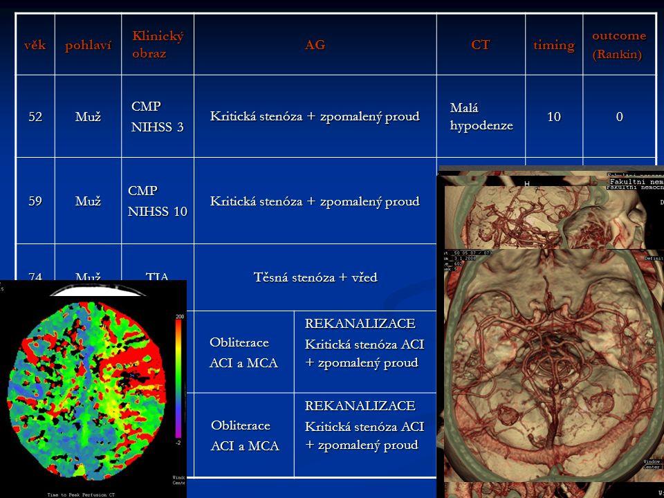věkpohlaví Klinický obraz AGCTtimingoutcome(Rankin) 52MužCMP NIHSS 3 Kritická stenóza + zpomalený proud Malá hypodenze 100 59MužCMP NIHSS 10 Kritická