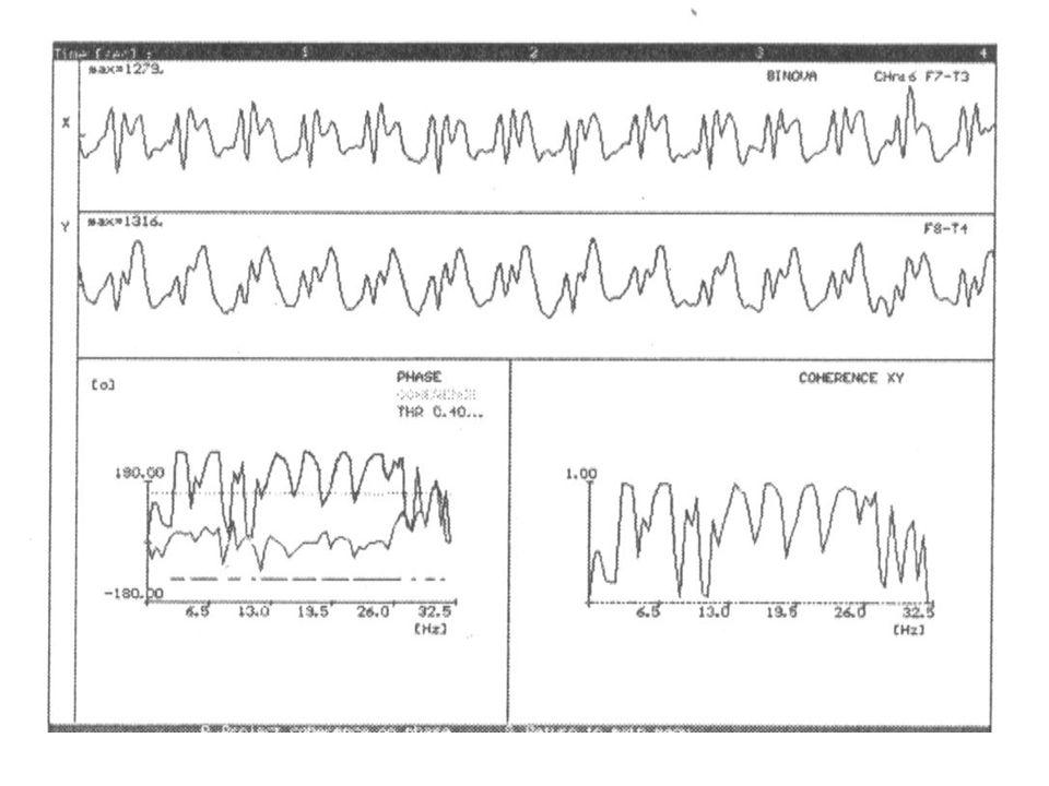 Interhemisferální a intrahemisferální EEG koherence Cíl: Pomocí různých EEG indikátorů nalézt optimální model použitelný v klinické praxi.