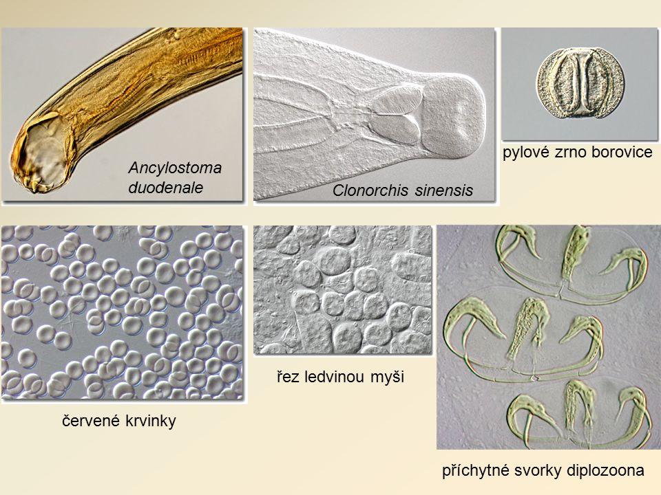 pylové zrno borovice Ancylostoma duodenale Clonorchis sinensis červené krvinky řez ledvinou myši příchytné svorky diplozoona