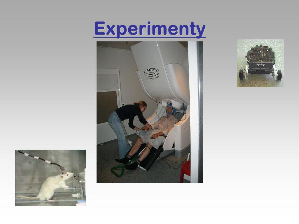 Použité zdroje:  http://en.wikipedia.org  http://www.lce.hut.fi/research/css/bci  http://www.ibva.com http://www.ibva.com  http://www.youtube.com/watch?v=NIG47YgndP8