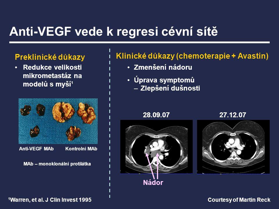Anti-VEGF vede k regresi cévní sítě Anti-VEGF MAbKontrolní MAb Redukce velikosti mikrometastáz na modelů s myší 1 Preklinické důkazy Courtesy of Marti