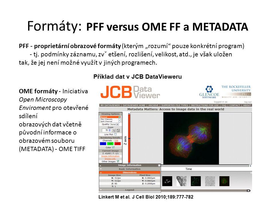 """Formáty: PFF versus OME FF a METADATA PFF - proprietární obrazové formáty (kterým """"rozumí"""" pouze konkrétní program) - tj. podmínky záznamu, zvˇ etšení"""