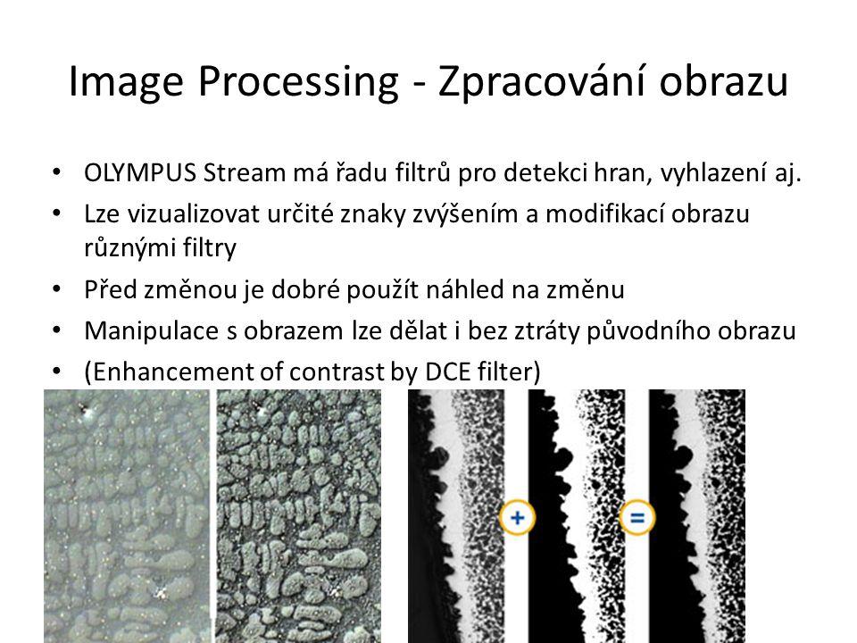 Image Processing - Zpracování obrazu OLYMPUS Stream má řadu filtrů pro detekci hran, vyhlazení aj. Lze vizualizovat určité znaky zvýšením a modifikací