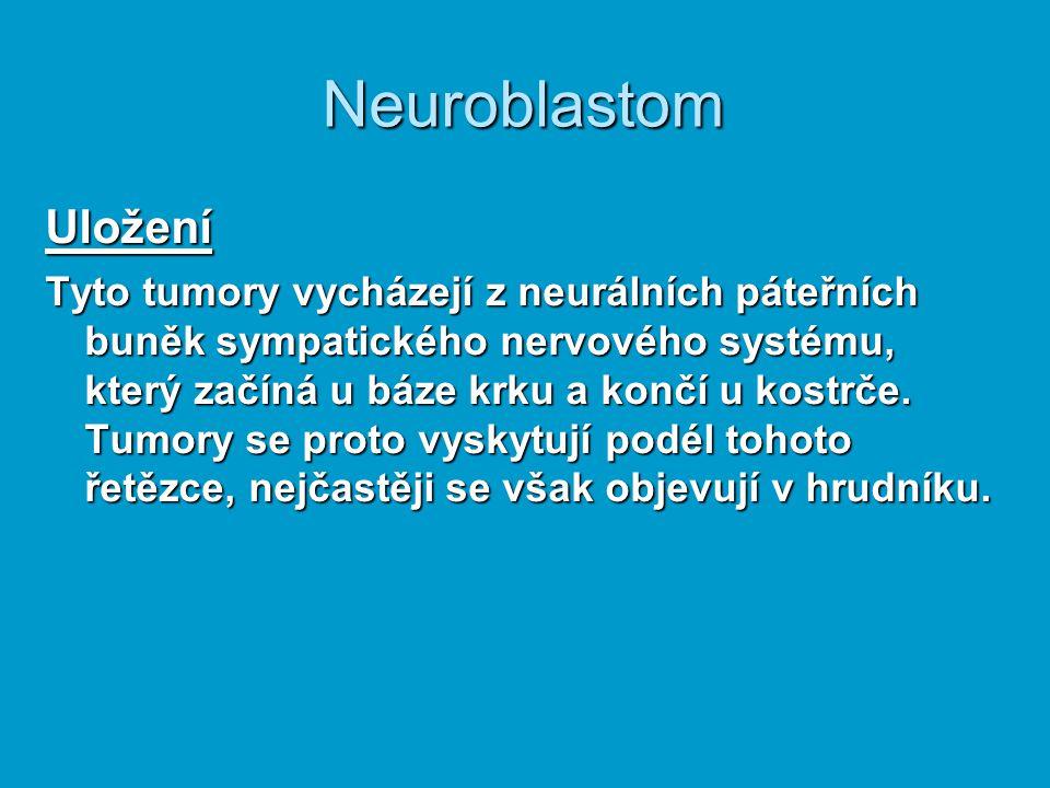 Neuroblastom Uložení Tyto tumory vycházejí z neurálních páteřních buněk sympatického nervového systému, který začíná u báze krku a končí u kostrče. Tu