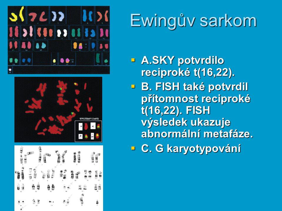  A.SKY potvrdilo reciproké t(16,22).  B. FISH také potvrdil přítomnost reciproké t(16,22). FISH výsledek ukazuje abnormální metafáze.  C. G karyoty
