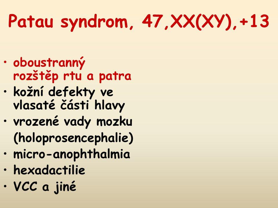Patau syndrom, 47,XX(XY),+13 oboustranný rozštěp rtu a patra kožní defekty ve vlasaté části hlavy vrozené vady mozku (holoprosencephalie) micro-anophthalmia hexadactilie VCC a jiné