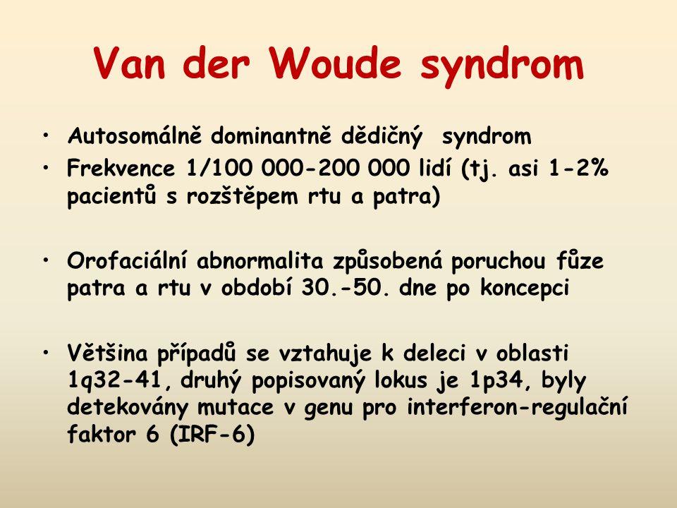 Van der Woude syndrom Autosomálně dominantně dědičný syndrom Frekvence 1/100 000-200 000 lidí (tj. asi 1-2% pacientů s rozštěpem rtu a patra) Orofaciá