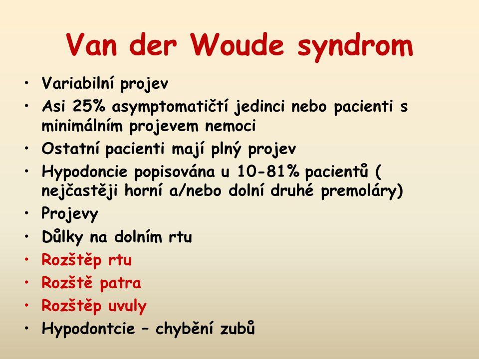 Van der Woude syndrom Variabilní projev Asi 25% asymptomatičtí jedinci nebo pacienti s minimálním projevem nemoci Ostatní pacienti mají plný projev Hy
