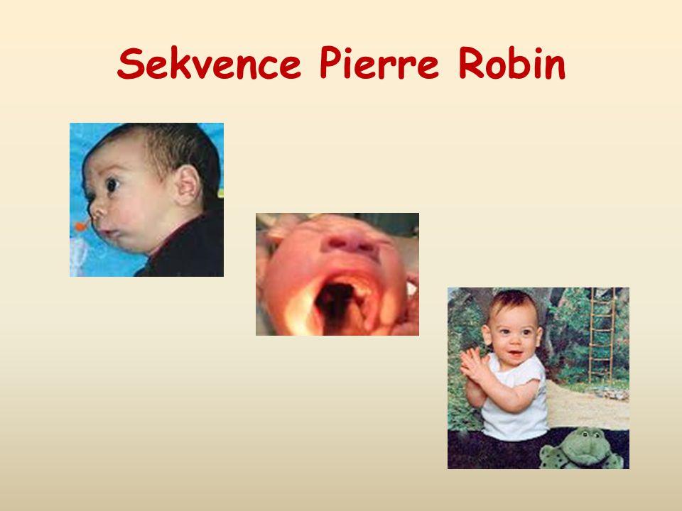 Sekvence Pierre Robin