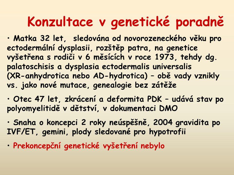 Konzultace v genetické poradně Matka 32 let, sledována od novorozeneckého věku pro ectodermální dysplasii, rozštěp patra, na genetice vyšetřena s rodiči v 6 měsících v roce 1973, tehdy dg.