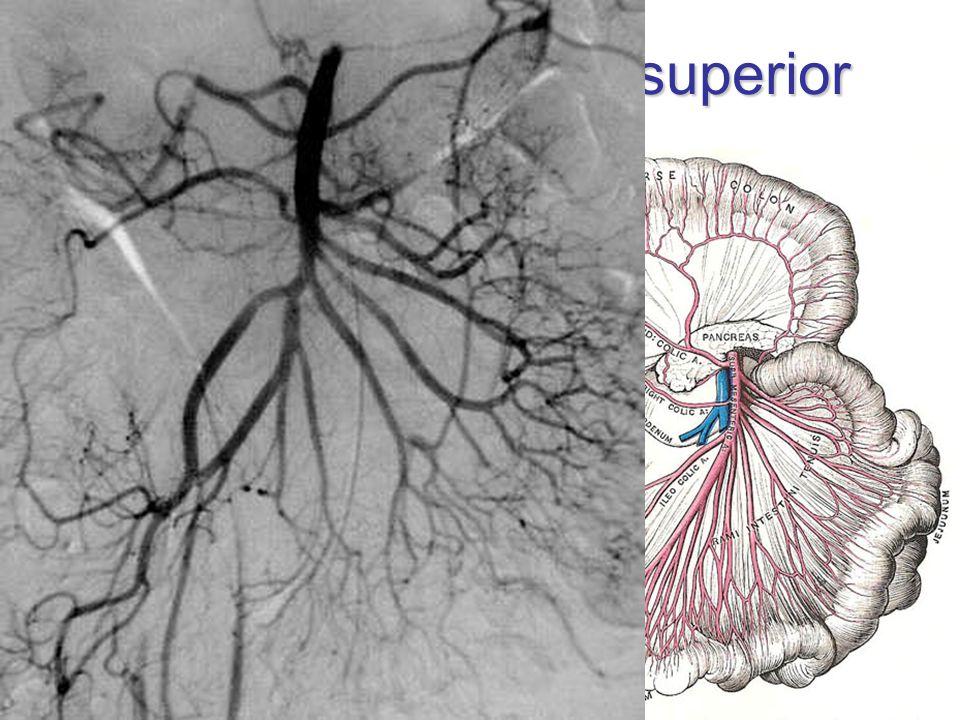 Arteria mesenterica superior L1, 1 cm pod TC ventrálně: collum pancreatis dorzálně: aorta, v. renalis sin., processus uncinatus, pars inferior duodeni