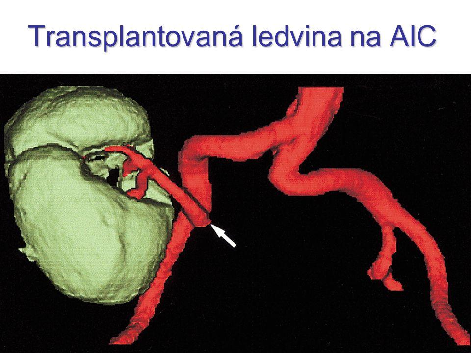Transplantovaná ledvina na AIC