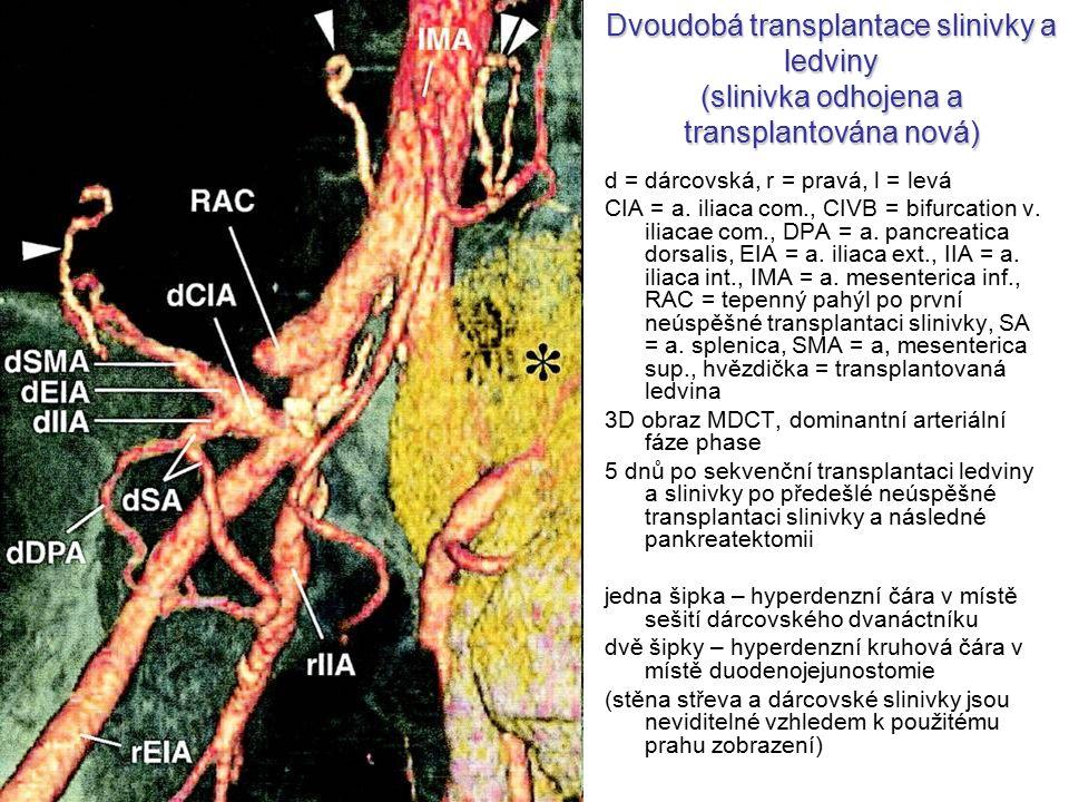 Dvoudobá transplantace slinivky a ledviny (slinivka odhojena a transplantována nová) d = dárcovská, r = pravá, l = levá CIA = a. iliaca com., CIVB = b