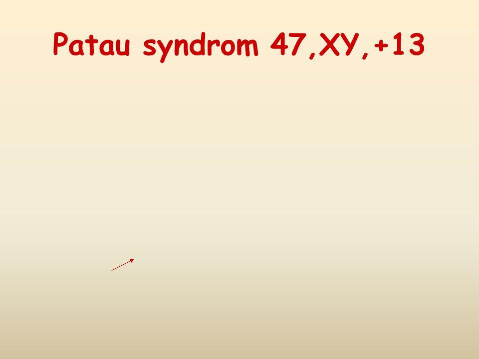 Patau syndrom 47,XY,+13