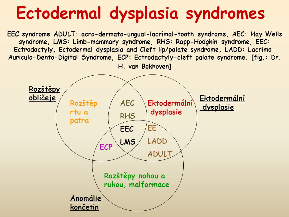 Ectodermal dysplasia syndromes EEC syndrome ADULT: acro-dermato-ungual-lacrimal-tooth syndrome, AEC: Hay Wells syndrome, LMS: Limb-mammary syndrome, RHS: Rapp-Hodgkin syndrome, EEC: Ectrodactyly, Ectodermal dysplasia and Cleft lip/palate syndrome, LADD: Lacrimo- Auriculo-Dento-Digital Syndrome, ECP: Ectrodactyly-cleft palate syndrome.