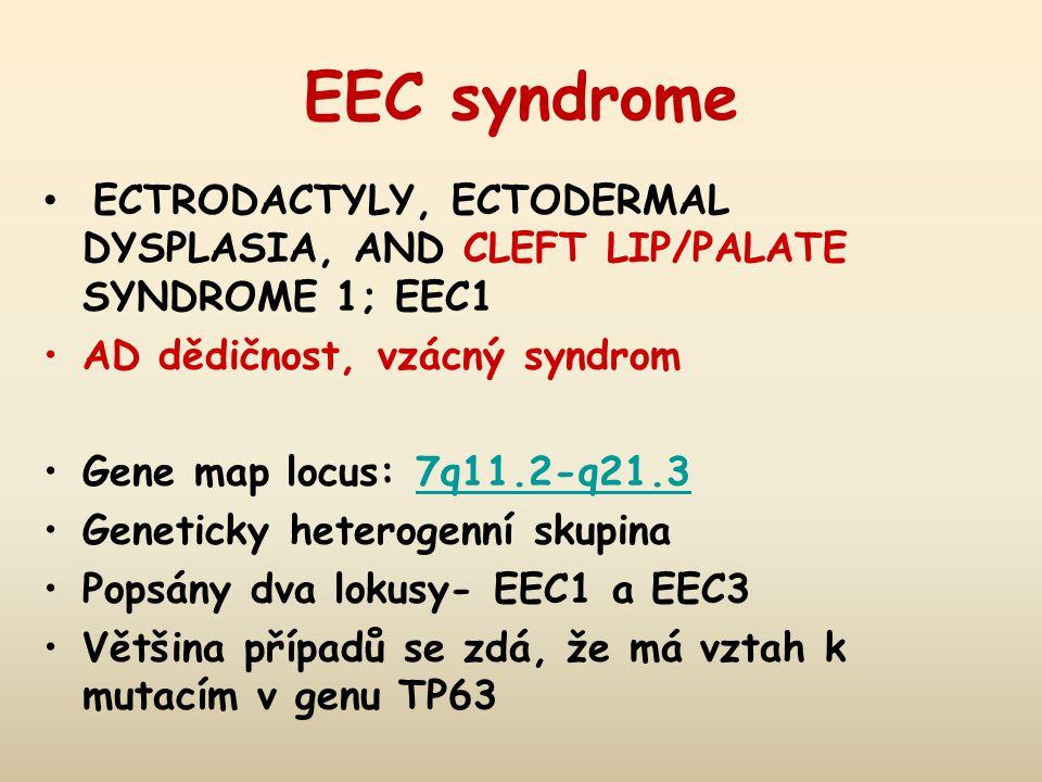 EEC syndrome ECTRODACTYLY, ECTODERMAL DYSPLASIA, AND CLEFT LIP/PALATE SYNDROME 1; EEC1 AD dědičnost, vzácný syndrom Gene map locus: 7q11.2-q21.37q11.2-q21.3 Geneticky heterogenní skupina Popsány dva lokusy- EEC1 a EEC3 Většina případů se zdá, že má vztah k mutacím v genu TP63