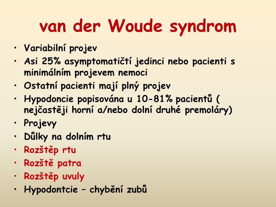 van der Woude syndrom Variabilní projev Asi 25% asymptomatičtí jedinci nebo pacienti s minimálním projevem nemoci Ostatní pacienti mají plný projev Hypodoncie popisována u 10-81% pacientů ( nejčastěji horní a/nebo dolní druhé premoláry) Projevy Důlky na dolním rtu Rozštěp rtu Rozště patra Rozštěp uvuly Hypodontcie – chybění zubů