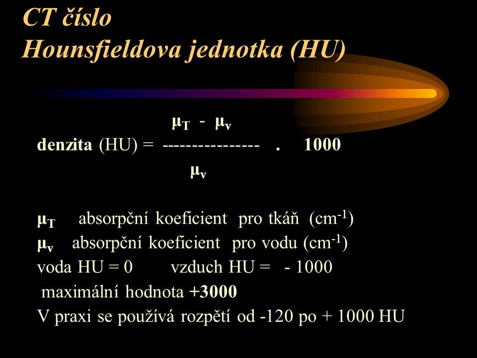 CT číslo Hounsfieldova jednotka (HU) μ T - μ v denzita (HU) = ----------------. 1000 μ v μ T absorpční koeficient pro tkáň (cm -1 ) μ v absorpční koef