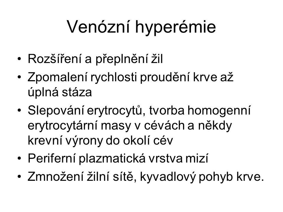 Venózní hyperémie Rozšíření a přeplnění žil Zpomalení rychlosti proudění krve až úplná stáza Slepování erytrocytů, tvorba homogenní erytrocytární masy