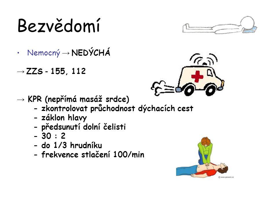 Bezvědomí Nemocný → NEDÝCHÁ → ZZS - 155, 112 → KPR (nepřímá masáž srdce) - zkontrolovat průchodnost dýchacích cest - záklon hlavy - předsunutí dolní č